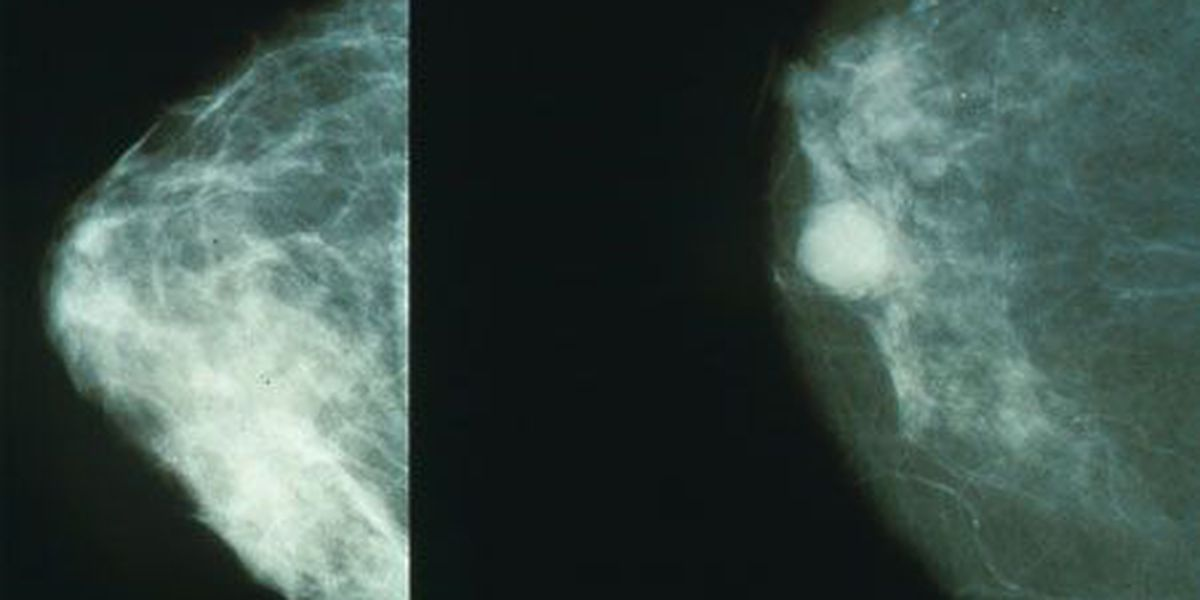 Health officials respond to new breast cancer screening guidelines
