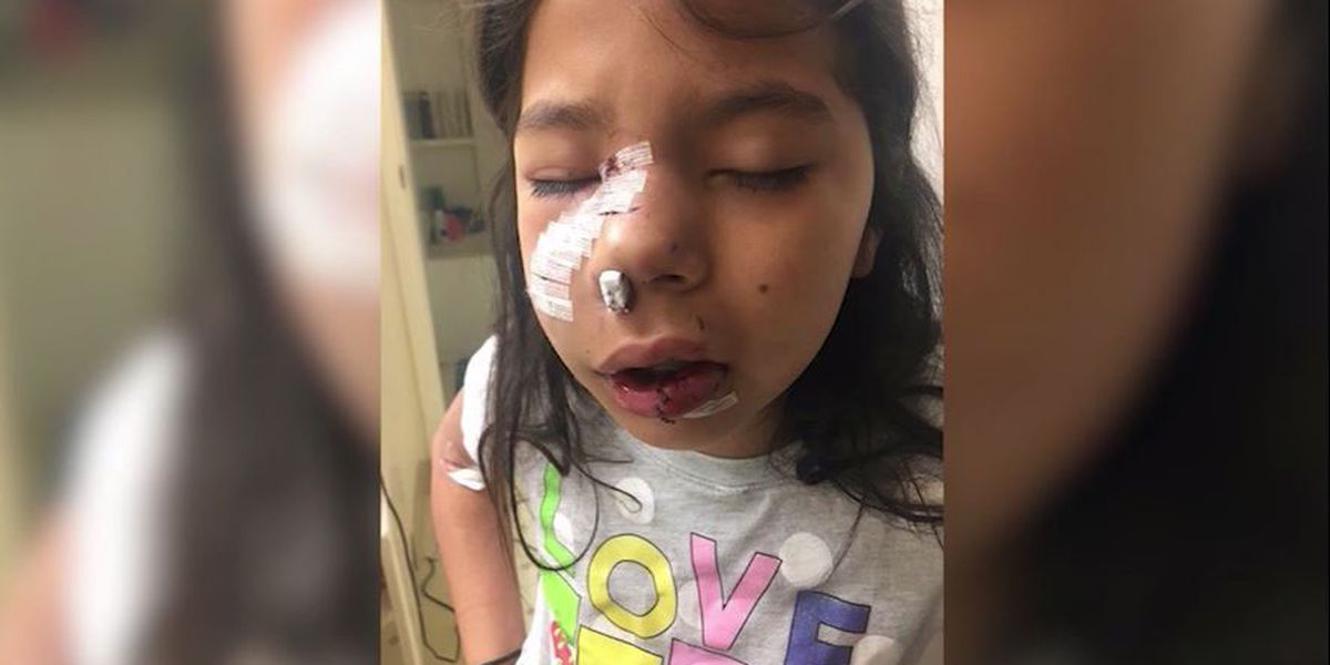 8-year-old's girl lip, cheek torn open in attack by dog visiting Calif. classroom