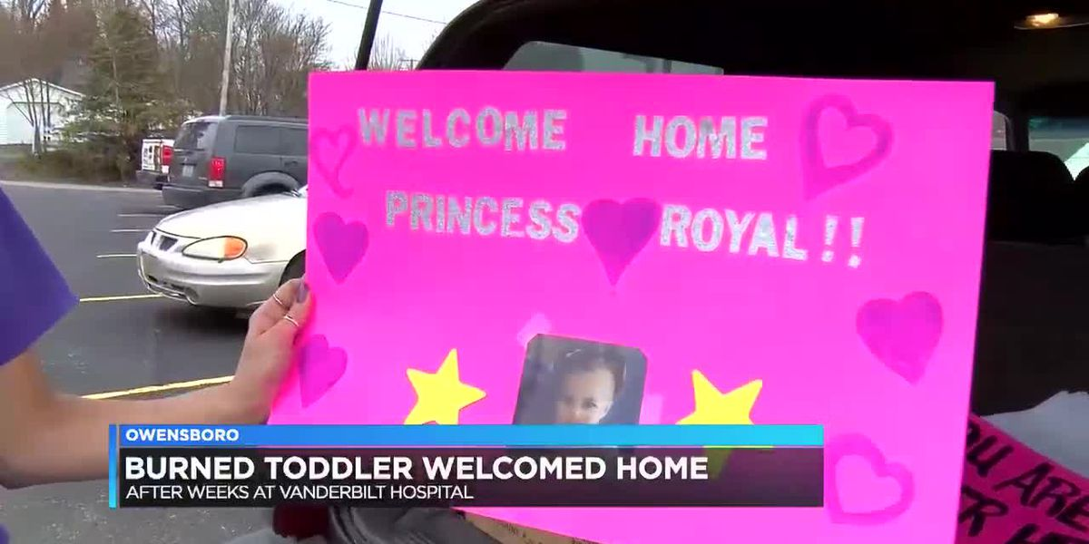 Family, friends welcome home Owensboro toddler who suffered burn injuries